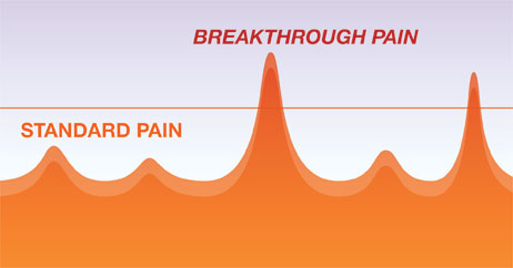 breakthrough-pain-graph
